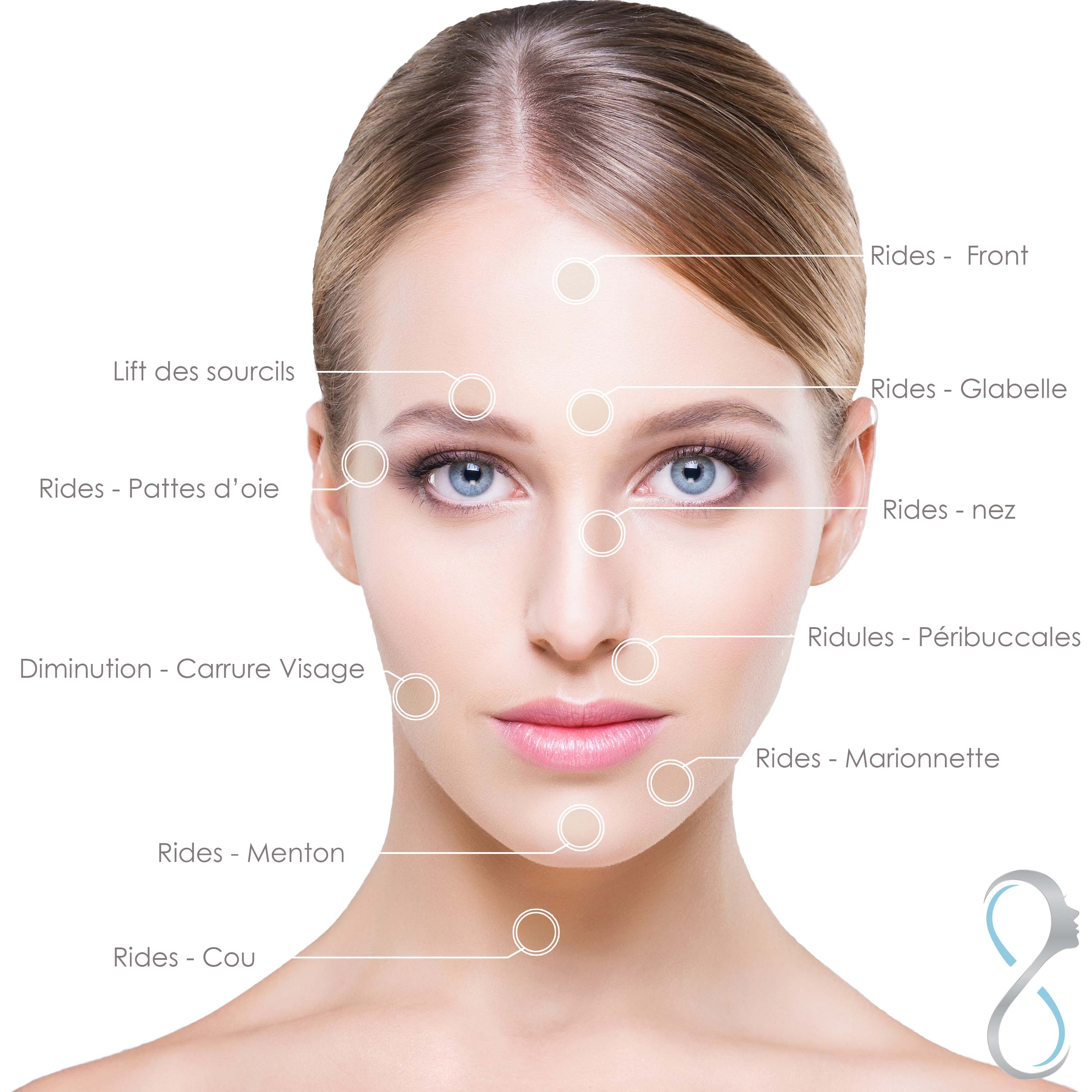 visage-injection-botox-zones