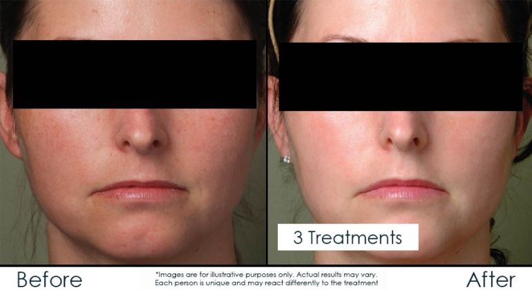 IPL pulsed light used to treat redness and brown spots in Ottawa